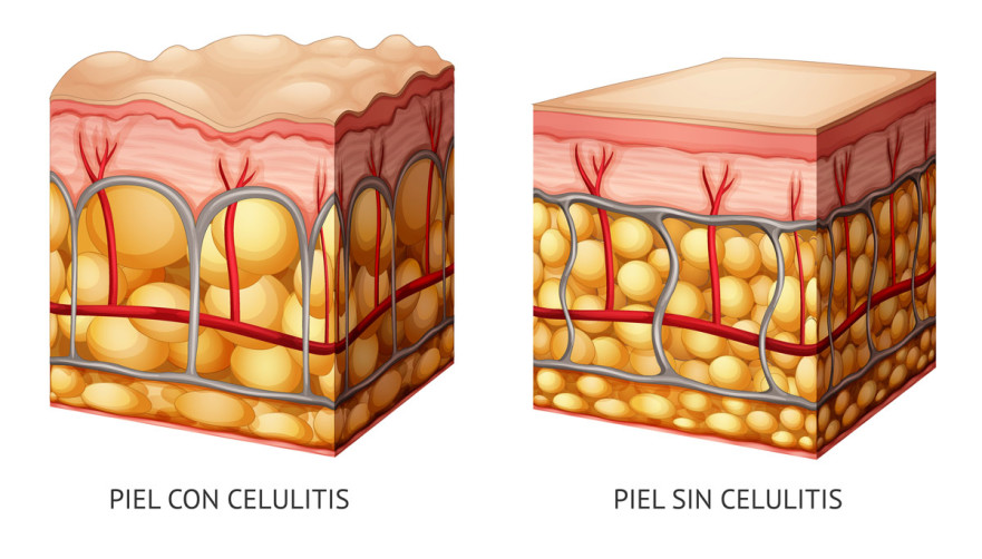 Celulitis Con Carboxiterapia