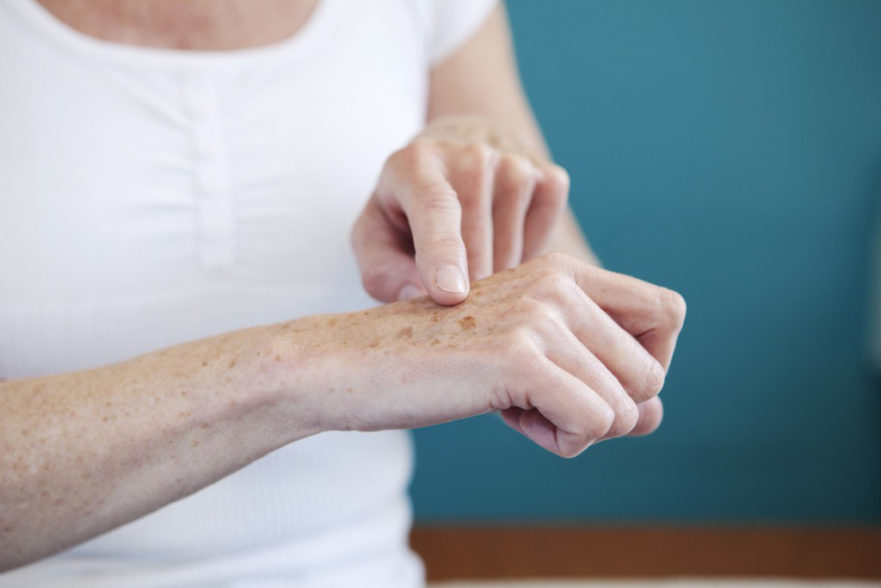 manchas en la piel de las manos